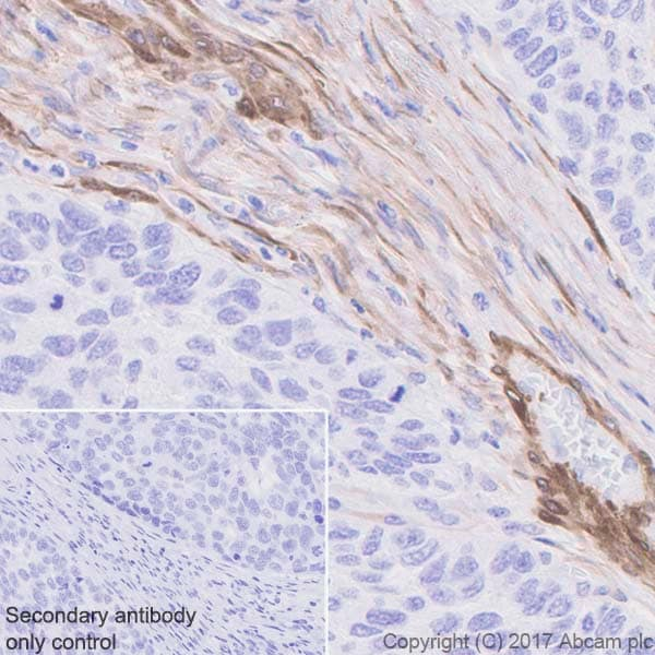 Immunohistochemistry (Formalin/PFA-fixed paraffin-embedded sections) - Anti-Calponin 1 antibody [EP798Y] - BSA and Azide free (ab216651)