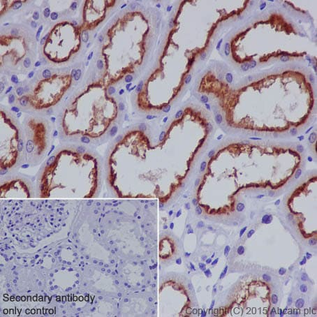 Immunohistochemistry (Formalin/PFA-fixed paraffin-embedded sections) - Anti-P Glycoprotein antibody [EPR10364-57] - BSA and Azide free (ab216656)