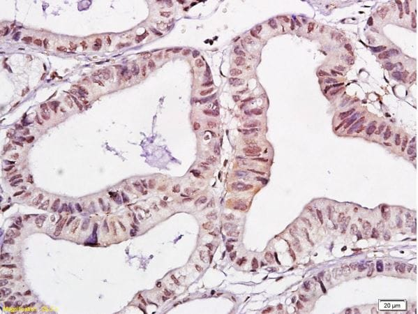 Immunohistochemistry (Formalin/PFA-fixed paraffin-embedded sections) - Anti-WWOX antibody (ab216660)