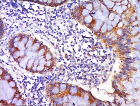 Immunohistochemistry (Formalin/PFA-fixed paraffin-embedded sections) - Anti-DR4 antibody (ab216662)