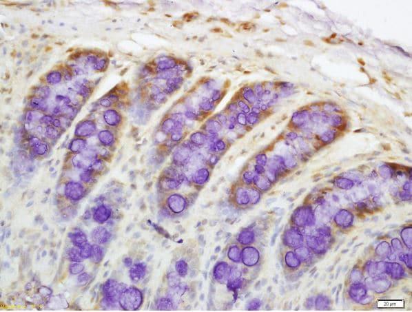 Immunohistochemistry (Formalin/PFA-fixed paraffin-embedded sections) - Anti-DR4 antibody (ab216662)