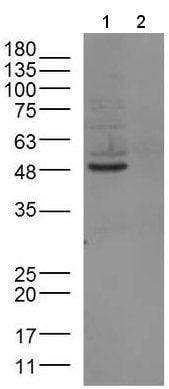 Western blot - Anti-PACAP receptor/ADCYAP1R1 antibody (ab216664)