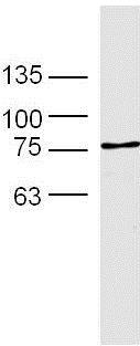 Western blot - Anti-Transferrin Receptor antibody (ab216665)
