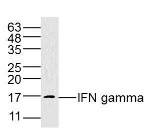 Western blot - Anti-Interferon gamma antibody (ab216671)