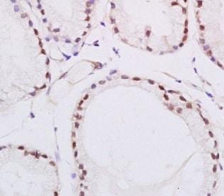 Immunohistochemistry (Formalin/PFA-fixed paraffin-embedded sections) - Anti-PPAR delta antibody (ab216676)