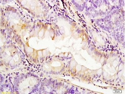 Immunohistochemistry (Formalin/PFA-fixed paraffin-embedded sections) - Anti-PDGFR alpha antibody - C-terminal (ab216677)