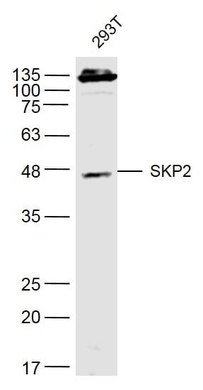 Western blot - Anti-SKP2 antibody (ab216687)