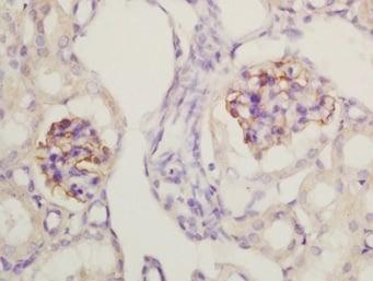 Immunohistochemistry (Formalin/PFA-fixed paraffin-embedded sections) - Anti-Nephrin antibody (ab216692)