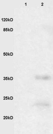 Western blot - Anti-EpCAM antibody (ab216832)