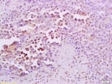 Immunohistochemistry (Formalin/PFA-fixed paraffin-embedded sections) - Anti-FRA2 antibody (ab216838)