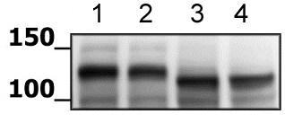 Western blot - Anti-HIF-1 alpha antibody (ab216842)