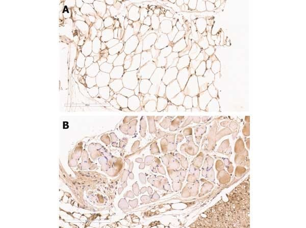Immunohistochemistry (Formalin/PFA-fixed paraffin-embedded sections) - Anti-ZO1 tight junction protein antibody (ab216880)