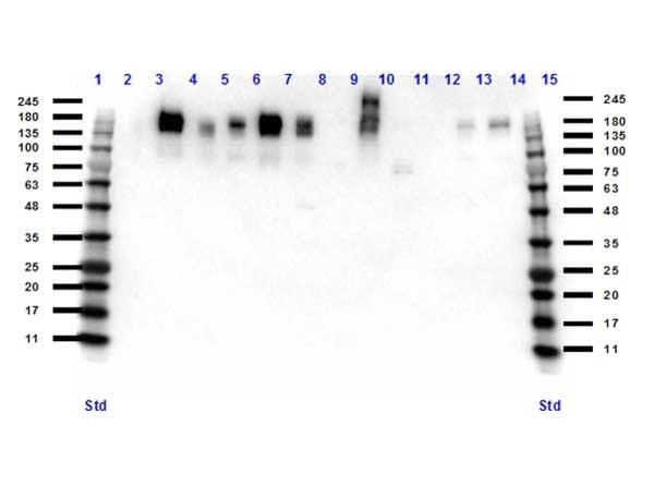 Western blot - Anti-ZO1 tight junction protein antibody (ab216880)