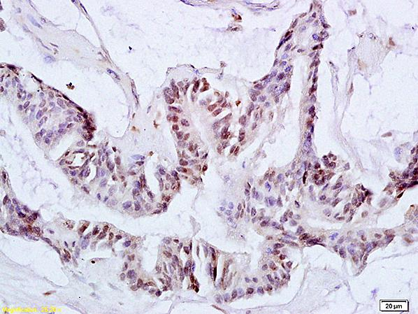 Immunohistochemistry (Formalin/PFA-fixed paraffin-embedded sections) - Anti-ACK1 antibody (ab216955)