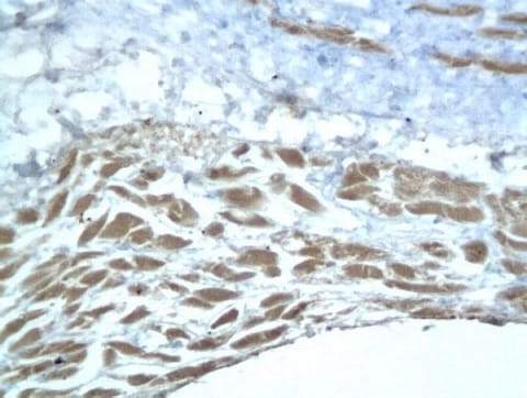 Immunohistochemistry (Formalin/PFA-fixed paraffin-embedded sections) - Anti-Aggrecan antibody (ab216965)
