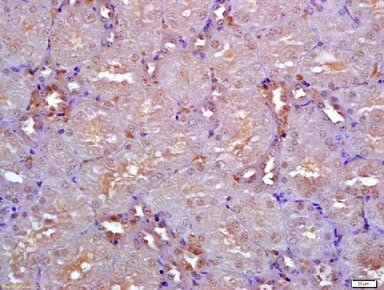 Immunohistochemistry (Formalin/PFA-fixed paraffin-embedded sections) - Anti-Nodal antibody (ab216967)
