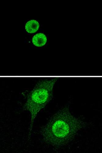 Immunocytochemistry/ Immunofluorescence - Anti-HMGB1 antibody [EPR3507] - BSA and Azide free (ab216986)