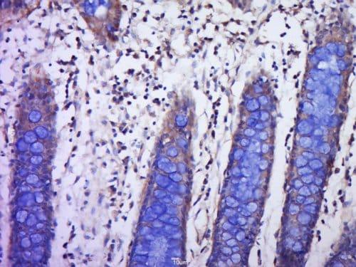 Immunohistochemistry (Formalin/PFA-fixed paraffin-embedded sections) - Anti-PLGF antibody (ab217001)
