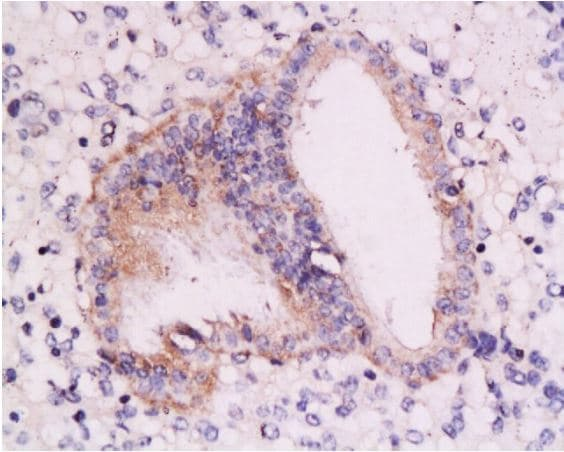 Immunohistochemistry (Formalin/PFA-fixed paraffin-embedded sections) - Anti-Retinoic Acid Receptor alpha antibody (ab217004)