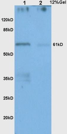Western blot - Anti-Chk2 antibody (ab217018)