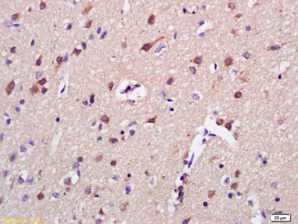 Immunohistochemistry (Formalin/PFA-fixed paraffin-embedded sections) - Anti-AKAP7 antibody (ab217030)