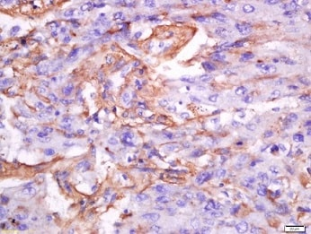 Immunohistochemistry (Formalin/PFA-fixed paraffin-embedded sections) - Anti-Cellular Apoptosis Susceptibility/CSE1L antibody (ab217041)