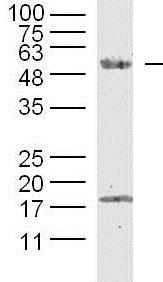 Western blot - Anti-SPOCK2 antibody (ab217044)