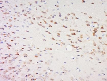 Immunohistochemistry (Formalin/PFA-fixed paraffin-embedded sections) - Anti-SPOCK2 antibody (ab217044)
