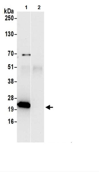 Immunoprecipitation - Anti-ATP5F1 antibody (ab217054)