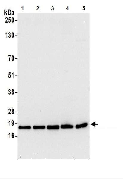Western blot - Anti-AP1S1 antibody (ab217055)