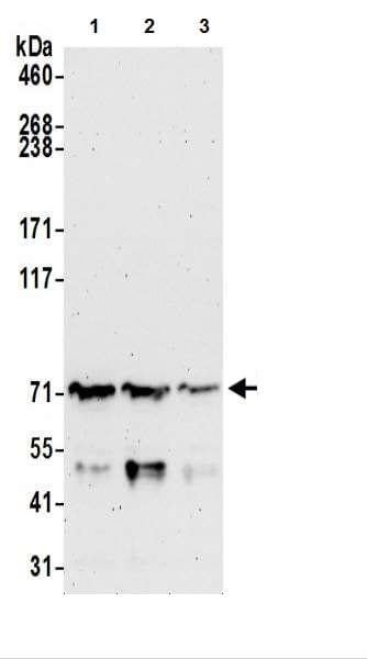 Western blot - Anti-UBQLN2 antibody (ab217056)
