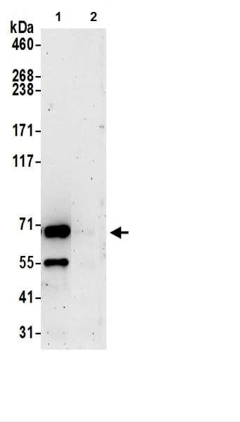 Immunoprecipitation - Anti-UBQLN2 antibody (ab217056)