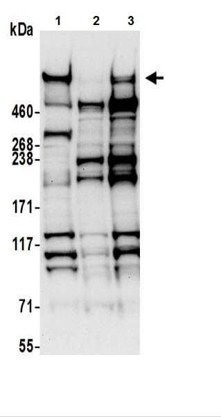 Western blot - Anti-Nesprin 2 antibody (ab217057)