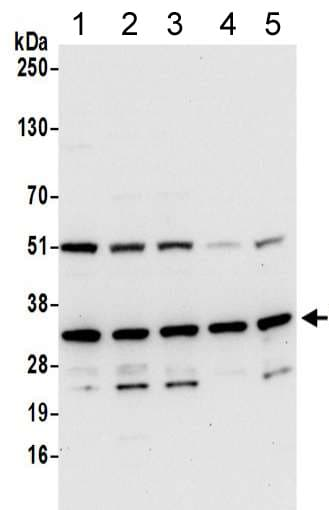 Western blot - Anti-RSU1 antibody (ab217061)