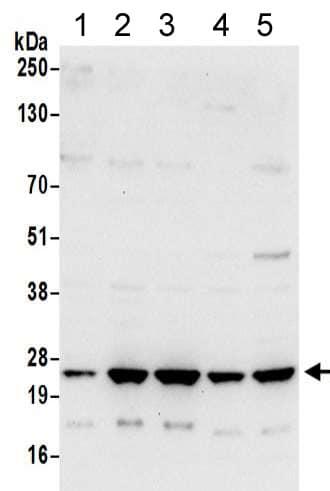 Western blot - Anti-ATP5F1 antibody (ab217062)