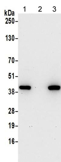 Western blot - Anti-Actin Regulatory Protein CAPG/MCP antibody (ab217064)