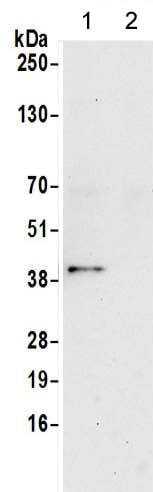 Immunoprecipitation - Anti-Actin Regulatory Protein CAPG/MCP antibody (ab217064)