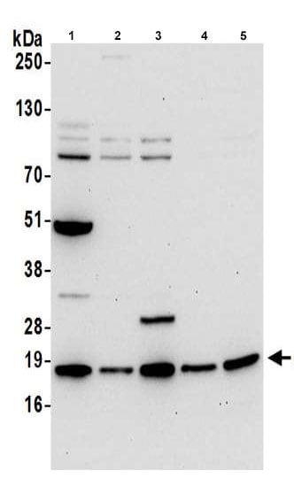 Western blot - Anti-ARPC4 antibody (ab217065)