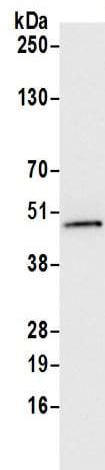 Immunoprecipitation - Anti-UQCRC2 antibody (ab217128)
