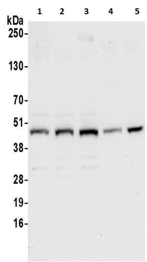 Western blot - Anti-Ribonuclease Inhibitor/RAI antibody (ab217132)