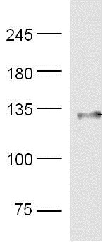 Western blot - Anti-Integrin beta 1 + Integrin alpha 3 antibody (ab217145)