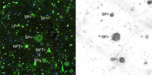 Immunohistochemistry (Formalin/PFA-fixed paraffin-embedded sections) - Anti-beta Amyloid antibody (ab217153)