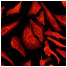 Immunocytochemistry/ Immunofluorescence - Anti-Cytokeratin 8 antibody [EP1628Y] - BSA and Azide free (ab217173)