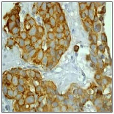 Immunohistochemistry (Formalin/PFA-fixed paraffin-embedded sections) - Anti-Cytokeratin 8 antibody [EP1628Y] - BSA and Azide free (ab217173)