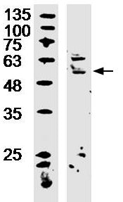 Western blot - Anti-HIATL1 antibody (ab217176)