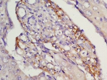 Immunohistochemistry (Formalin/PFA-fixed paraffin-embedded sections) - Anti-CCR7 antibody (ab217181)