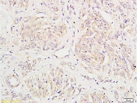 Immunohistochemistry (Formalin/PFA-fixed paraffin-embedded sections) - Anti-Tissue kallikrein antibody (ab217203)