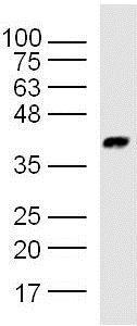 Western blot - Anti-KCTD9 antibody (ab217282)
