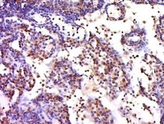 Immunohistochemistry (Formalin/PFA-fixed paraffin-embedded sections) - Anti-CX3CR1 antibody (ab217291)