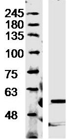 Western blot - Anti-Trehalase antibody (ab217293)